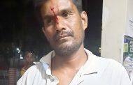 মোংলায় তুচ্ছ ঘটনায় দিনমজুরকে পিটিয়ে রক্তাক্ত জখম